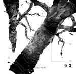 © 'This Tree is Numbered #93' 2014 ink on paper Peteris Ciemitis